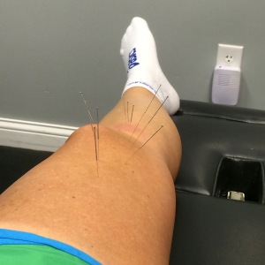 Dry needling is NOT my idea of a good time, but if it gets me running again, I'll endure the pain that comes with it!!