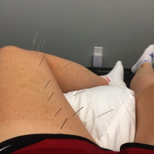 Dry needling to assist my healing...thanks to Dr. Chris at Team Chiropractic