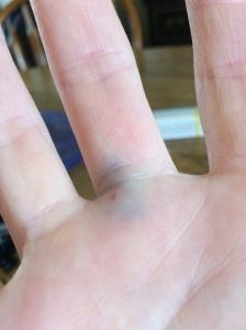 Nice bruise post drainage!